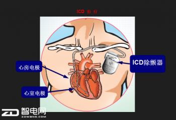 全皮下植入式心脏复律除颤器与体外除颤器的发展与未来