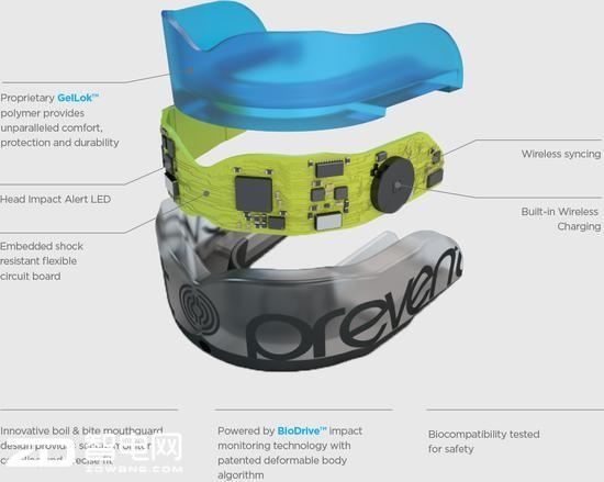 医疗黑科技:智能牙套能实时监测脑震荡损伤