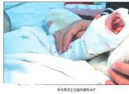左手伸进飞转的豆浆机 2岁男童4根手指被切断