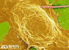 光敏纳米线或有助于大脑疾病的治疗 帕金森病治愈有望