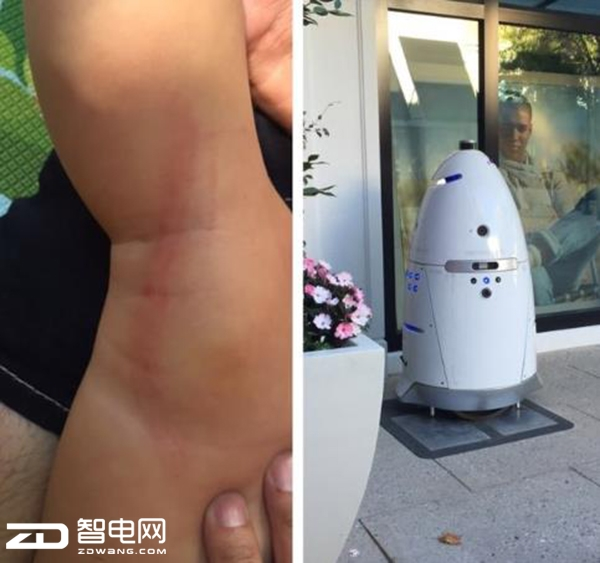 270斤安保机器人 意外事故撞倒幼童